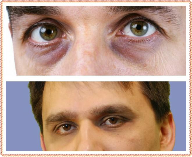 синяки под глазами причины у мужчин лучшие средства