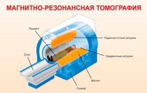 МРТ (Магнитно-резонансная томография)