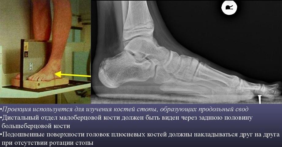 Рентген стопы с нагрузкой