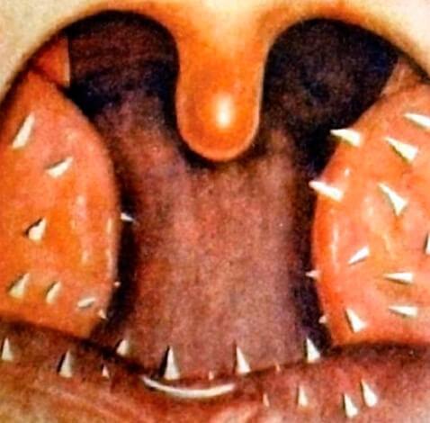 Гиперкератоз миндалин