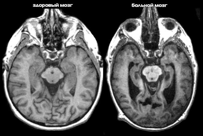 Болезнь Альцгеймера на снимке МРТ