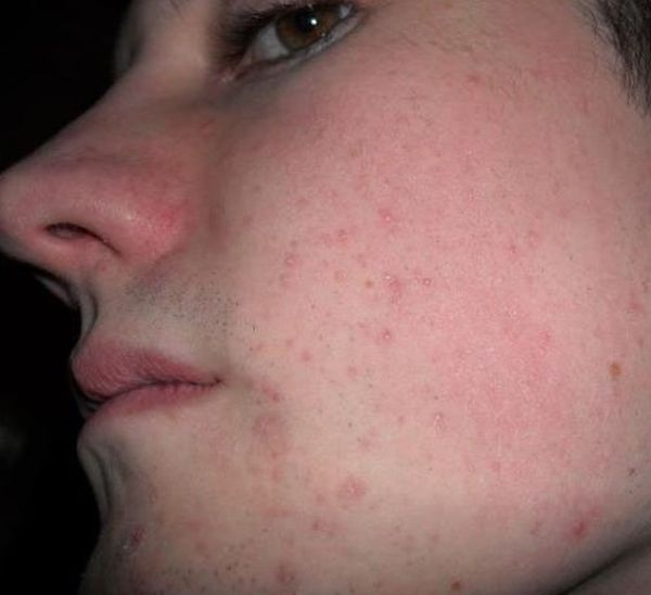 Гормональные прыщи на лице связь сбоя гормонов и акне