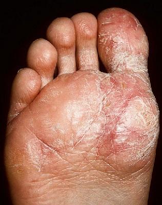 Экзема на ногах лечение мазями и препаратами в домашних условиях