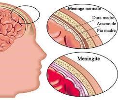 Распостранение воспаления в область мозга