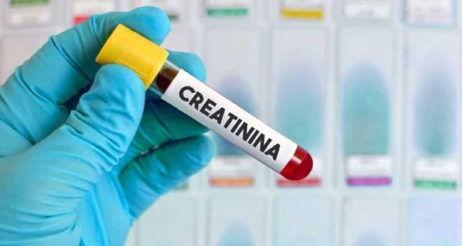 Тест на креатинин