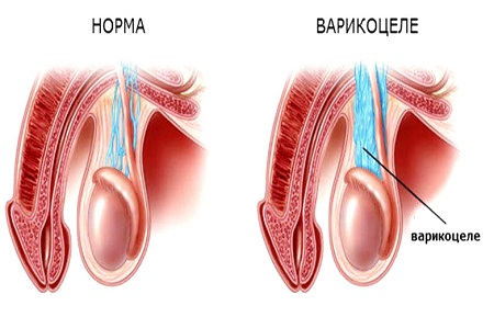 Варикоцеле: что это такое и как лечить варикоцеле у мужчин