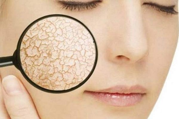 шелушится кожа на носу что делать и как убрать покраснение