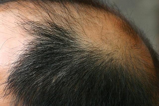 Гормоны влияющие на выпадение волос при гормональном сбое