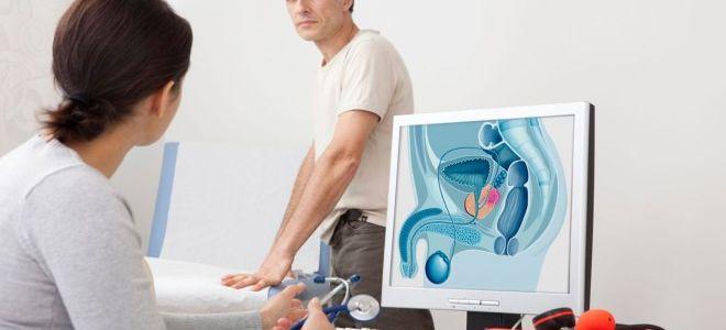 Подготовка и особенности проведения ТрУЗИ предстательной железы