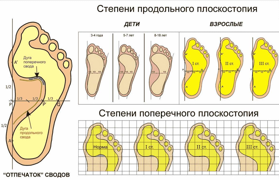 Степени плоскостопия на рентгенографии