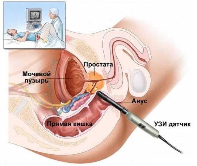 Трансректальный метод УЗИ мочевого пузыря