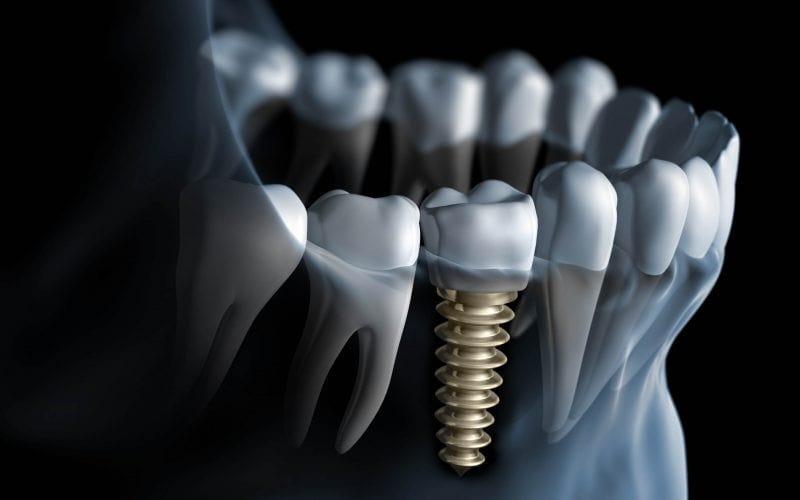 Какие выбрать коронки на зубы?