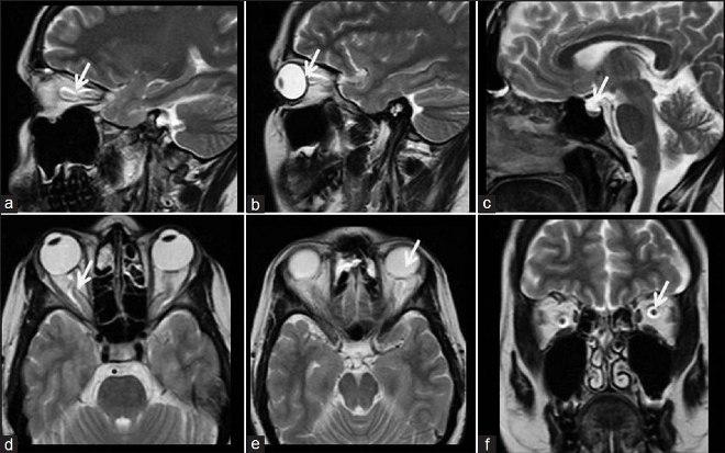 Снимок уха на МРТ