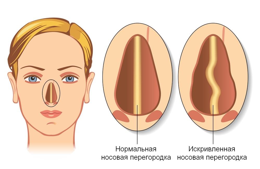 Любое анатомическое отклонение, нарушающее нормальное дренирование и аэрацию пазухи, способствует развитию заболевания.