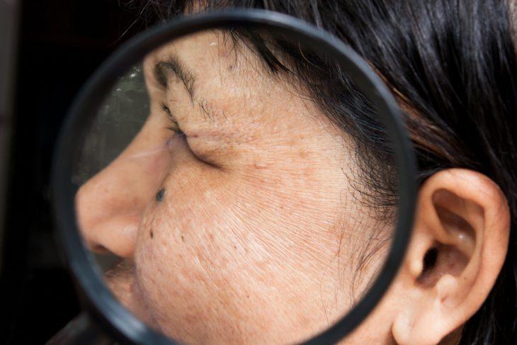 круглые пятна на коже и овальные причины их появления