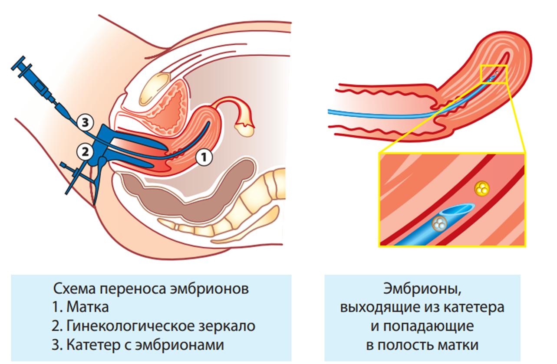 перенос эмбриона при ЭКО