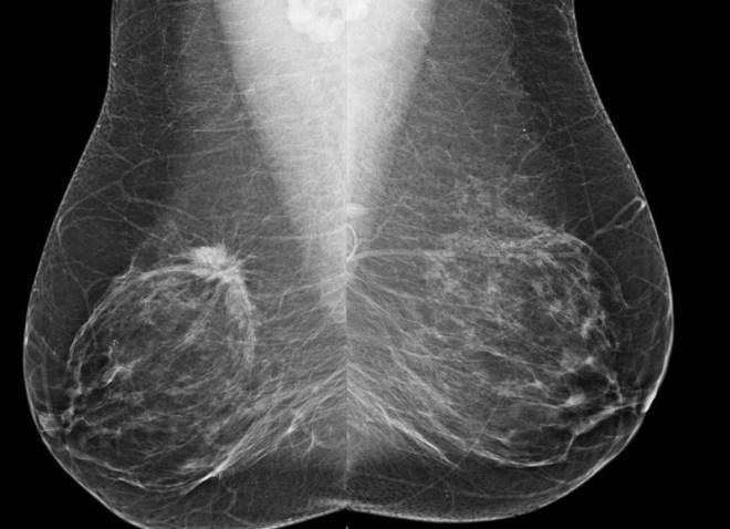 Снимок груди на маммографе