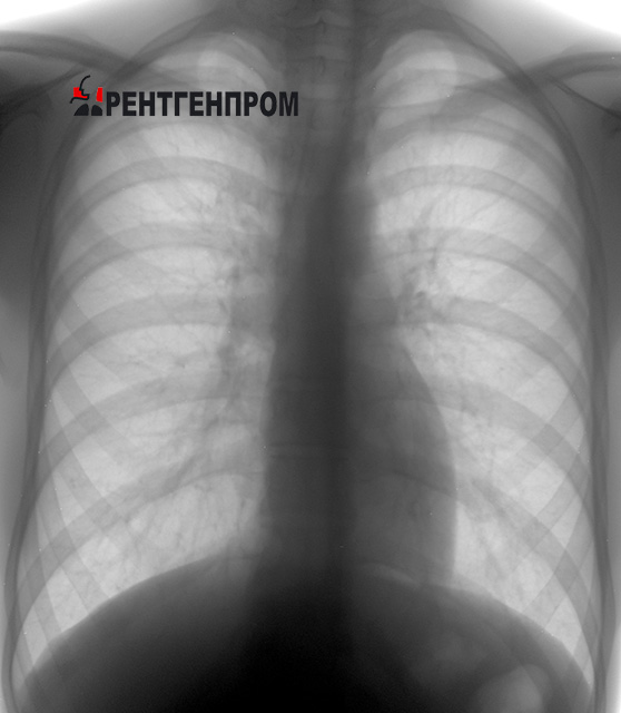 Снимок лёгких — норма