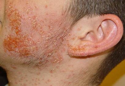 Золотистый стафилококк: симптомы и лечение у взрослых