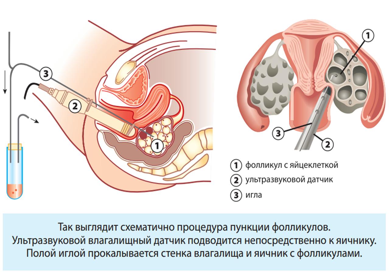 пункция яичников при ЭКО
