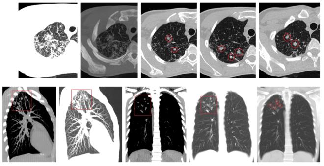 Инфильтративный туберкулез на снимках КТ