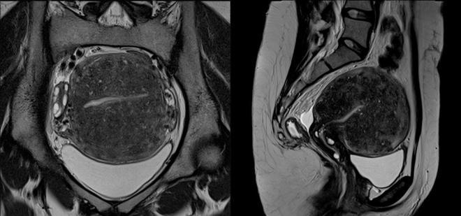Снимок МРТ органов малого при эндометриозе