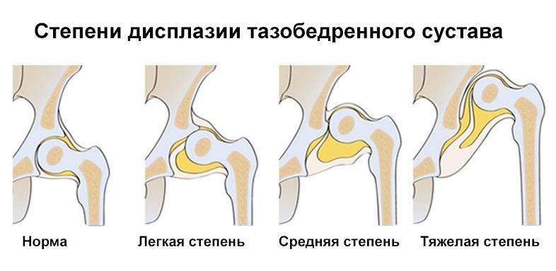 Рентгенография тазобедренного сустава: для чего проводится