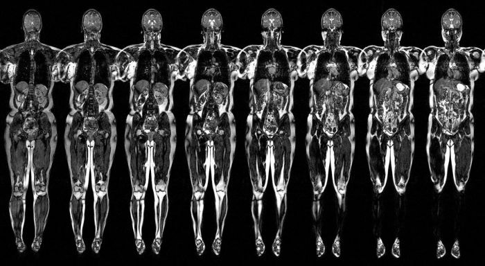 МРТ всего тела в режиме ДВ