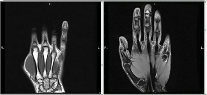 Снимок МРТ кисти руки