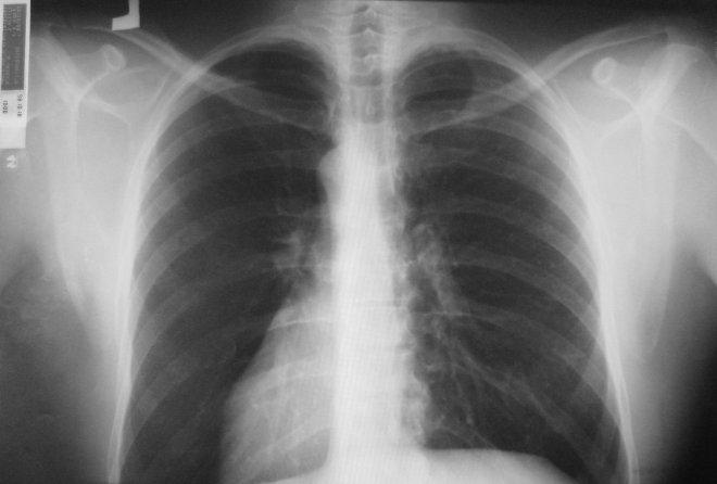 Снимок рентгена легких