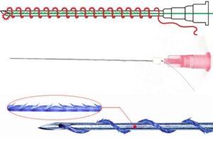 Спиральные мезонити