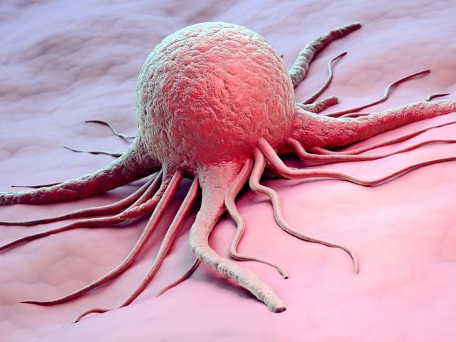 Ценность МРТ при диагностике онкологии