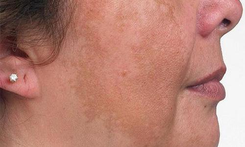средства от пигментации на лице эффективные маски от пигментных пятен