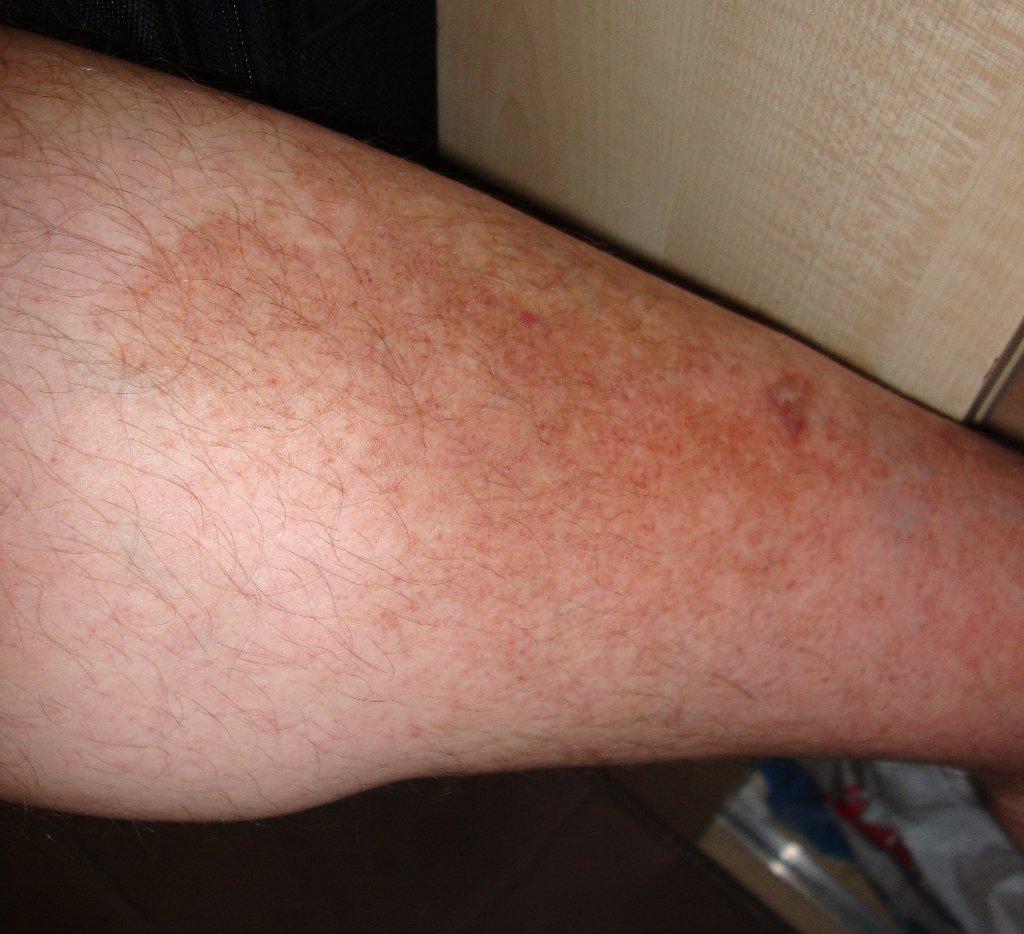 Пигментация кожи на ногах как избавиться от пигментных пятен