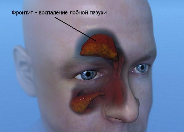 Как выглядит фронтит на рентгеновском снимке