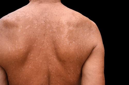 Солнечный лишай у человека: фото, симптомы и лечение