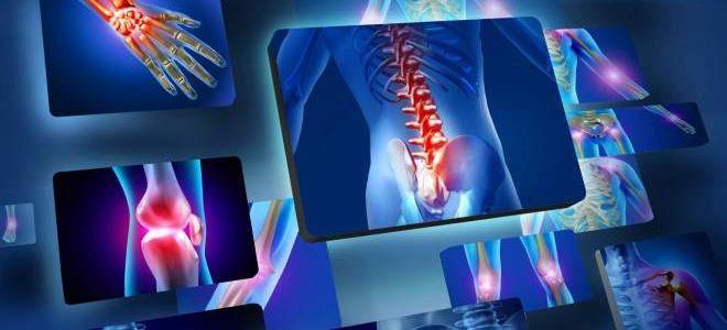 Комплексное МРТ всего тела