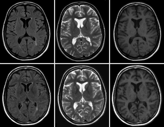 Результат КТ головного мозга
