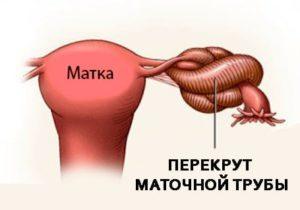 Перекрут маточных труб