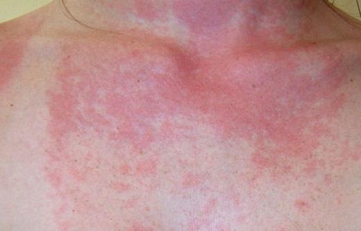 Аллергия на солнце: симптомы (фото), лечение и профилактика