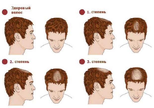 Зуд кожи головы и выпадение волос причины и лечение