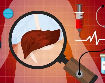 Токсический гепатит печени симптомы и лечение
