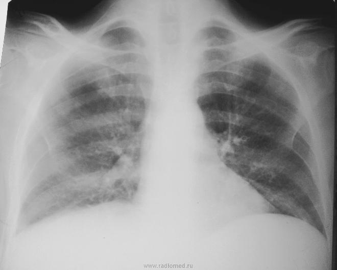 Диффузный пневмосклероз на рентгеновском снимке