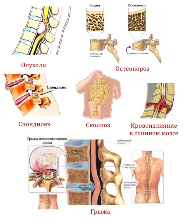 Показания к КТ грудного отдела позвоночника