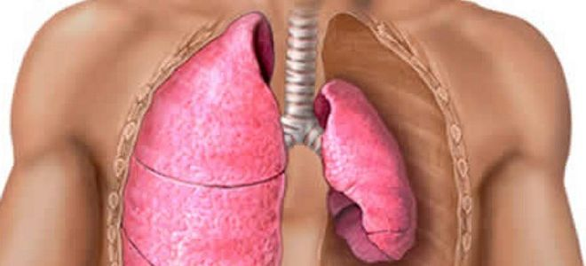 Признаки, по которым определяется пневмоторакс на рентгенограмме