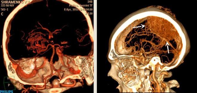 КТ ангиография сосудов головного мозга с контрастом