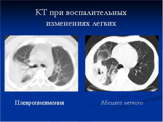 Снимок КТ при воспалениях легких