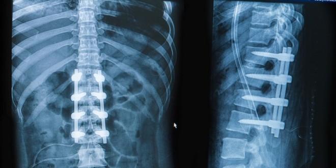 Повреждение позвоночника на рентгеновском снимке