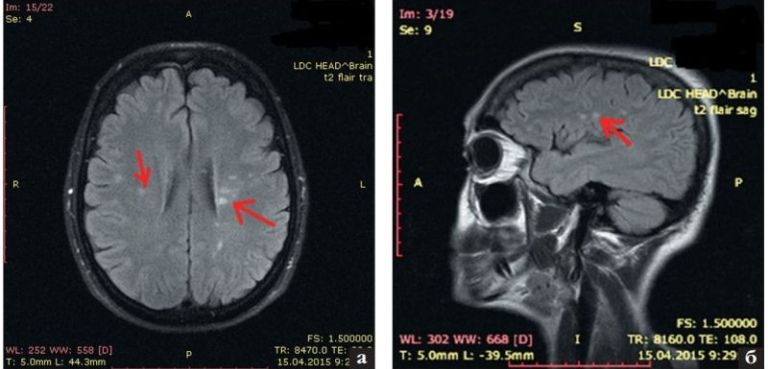 Демиелинизирующие патологии на снимке МРТ