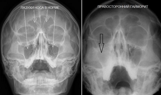Рентгенографические признаки гнойного гайморита